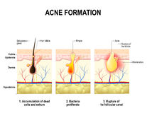 Acne formation. human skin. Royalty Free Stock Photo