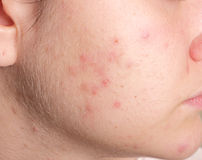 Acne on the girl's face Royalty Free Stock Photos