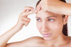 Acne is a girl Stock Photos