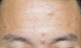 Acne head on the forehead. stock image