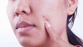 Acne. Image of acne on the face of a woman Stock Photography