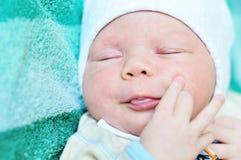 Acne neonatorum. Newborn baby  with baby rash Royalty Free Stock Photo