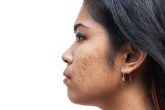 Acne op de vrouwen van het huidgezicht royalty-vrije stock foto