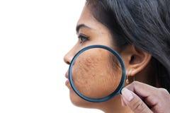 Acne op de vrouwen van het huidgezicht royalty-vrije stock afbeelding