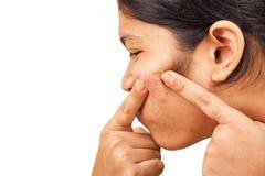 Acne op gezichtsmeisje stock afbeelding