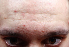 Acne pimples on the face Stock Image