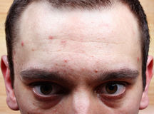 Acne pimples on the face Stock Photography