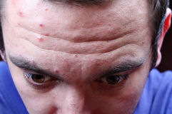 Acne pimples on the face Royalty Free Stock Photos
