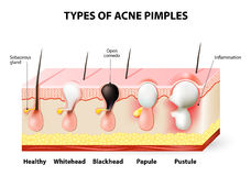 Acne pimples royalty free illustration