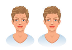 Acne. Problem skin face on a white background stock illustration