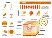 acne problemas de pele medicina no infographics médico Fotografia de Stock