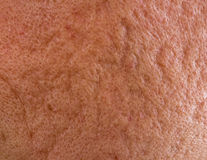 Acne scars on cheek. Close up of problematic skin with deep acne scars on cheek Stock Photography