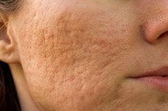 Acne scars Stock Photos