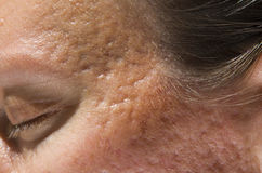 Acne scars Stock Images