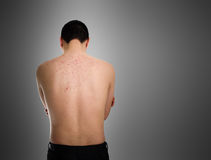 Acne, scars and keloids in the back of young man. Royalty Free Stock Image