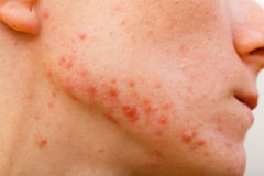 Acne skin royalty free stock photo