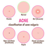 Acne skin care Royalty Free Stock Photo