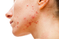 Acne skin. Because the disorders of sebaceous glands productions stock photos