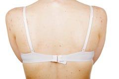 Acne skin on female back Stock Image