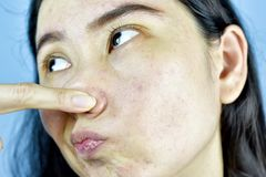Acne skin problem, Asian woman annoy and bored about hormonal pimples. royalty free stock images