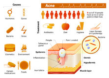 Acne. skin problems. medicine in medical infographics. royalty free illustration