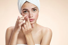 Acne spot pimple spot skincare beauty care girl pressing on skin problem face. Woman with skin blemish isolated, beige royalty free stock photos
