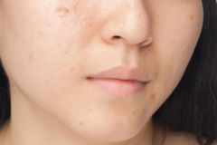 Acne spots. Woman with oily skin and acne scars stock images