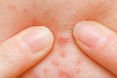 Acne squeezing. Squeezing pimple to clean the skin closeup Stock Images