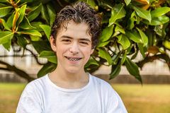 Acne teenager with braces Stock Image