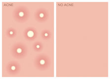 Acne , before and after texture ,  Royalty Free Stock Images