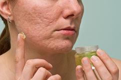Acne therapy. Girl applying aloe gel to problematic skin with acne scars Royalty Free Stock Photo