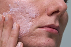 Acne treatment Stock Images
