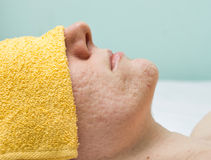Acne treatment Stock Image