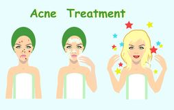 Acne treatment before after, skin problem solution,vector illustration. For cosmetic salons Royalty Free Stock Images