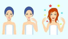 Acne treatment before after, vector illustration. Acne treatment before after, skin problem solution,vector illustration Royalty Free Stock Photo