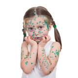 Acnes on child. chickenpox Royalty Free Stock Photo