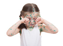 Acnes on child. chickenpox Stock Photos