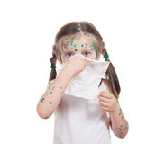 Acnes on child. chickenpox Royalty Free Stock Photography