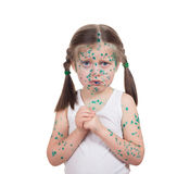 Acnes on child. chickenpox Stock Image