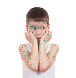 Acnes on child. chickenpox Royalty Free Stock Image