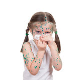 Acnes on child. chickenpox Stock Photography