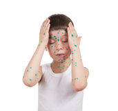Acnes on child. chickenpox Stock Photo