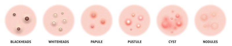Acnetypes, de mee?ters van huidpukkels en gezicht comedones Vectorpictogrammen van de pukkels van de huidacne, de kosmetiek skinc vector illustratie