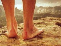 Acople dano e os pés cansados que descansam na parte superior da montanha imagens de stock