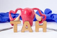 Acrônimo de TAN Surgical ou abreviatura médica da histerectomia abdominal total - a cirurgia de remove o ventre do útero da mulhe foto de stock