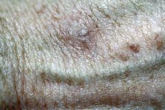 Actinic Keratoses. Photo of skin lesion (white spot) after being treated by cryosurgery Royalty Free Stock Image
