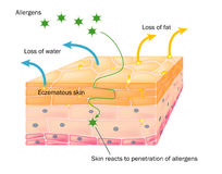 Action of eczema on skin. Diagramatic cross section of skin showing the effects of eczema Royalty Free Stock Images