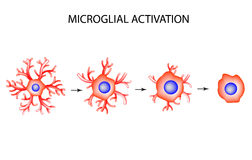 Activation of microglia. Neuron. Nerve cell. Infographics. Vector illustration on  background. Royalty Free Stock Images