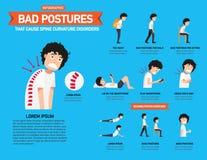 Acueste las posturas que causan los desordenes de la curvatura de la espina dorsal infographic stock de ilustración