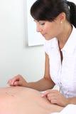 Acupunctura Foto de Stock Royalty Free